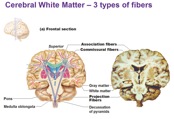 cerebral white matter and gray matter and basal ganglia