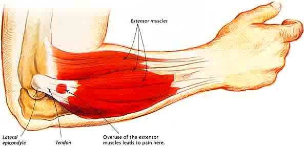How I Got Rid of My Tennis Elbow